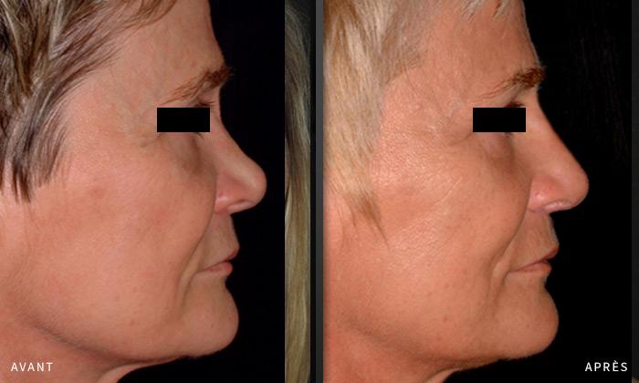 chirurgie esth tique et reconstructrice du visage 91 et 77 docteur arnault laxenaire. Black Bedroom Furniture Sets. Home Design Ideas